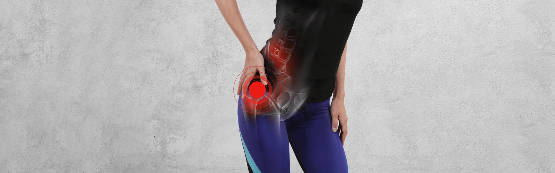 Hip Joint Dislocation: Causes, Types, and Treatment Options